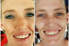 NAS_Cosmetics_Before_After_20170220_135318
